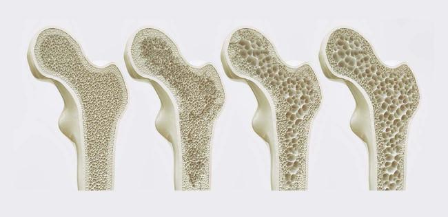 Verlauf von Osteoporose: Zunehmend löchrige Knochenstruktur