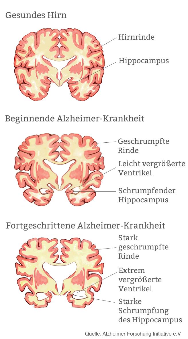 Beste Hirnrinde Anatomie Ideen - Anatomie Von Menschlichen ...