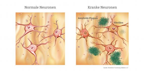 Alzheimer Neuronen