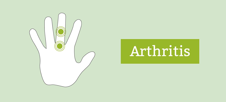 Daumengelenk Schmerzt Artrose síntomas de diabetes