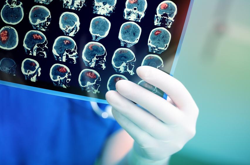 Frontotemporale Demenz Morbus Pick Lebenserwartung Verlauf