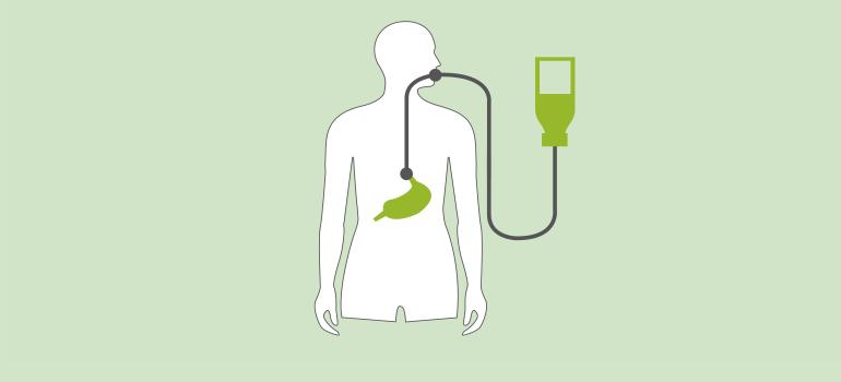 Enterale Ernährung Sondennahrung