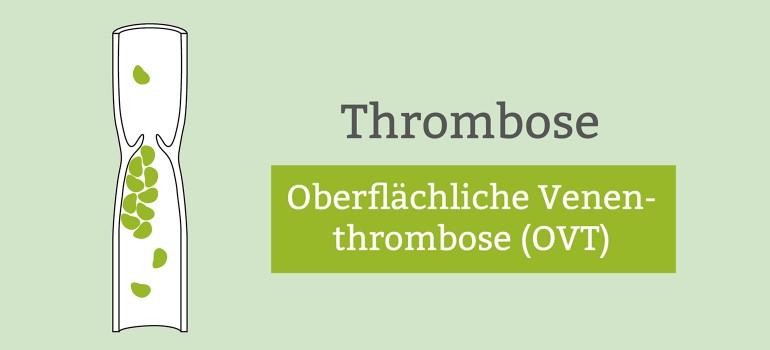 Oberflaechliche Venenthrombose