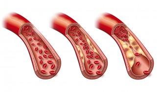 Ischämischer Schlaganfall durch Arteriosklerose