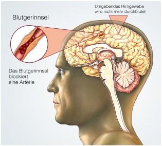 Schlaganfall Ursache im Gehirn