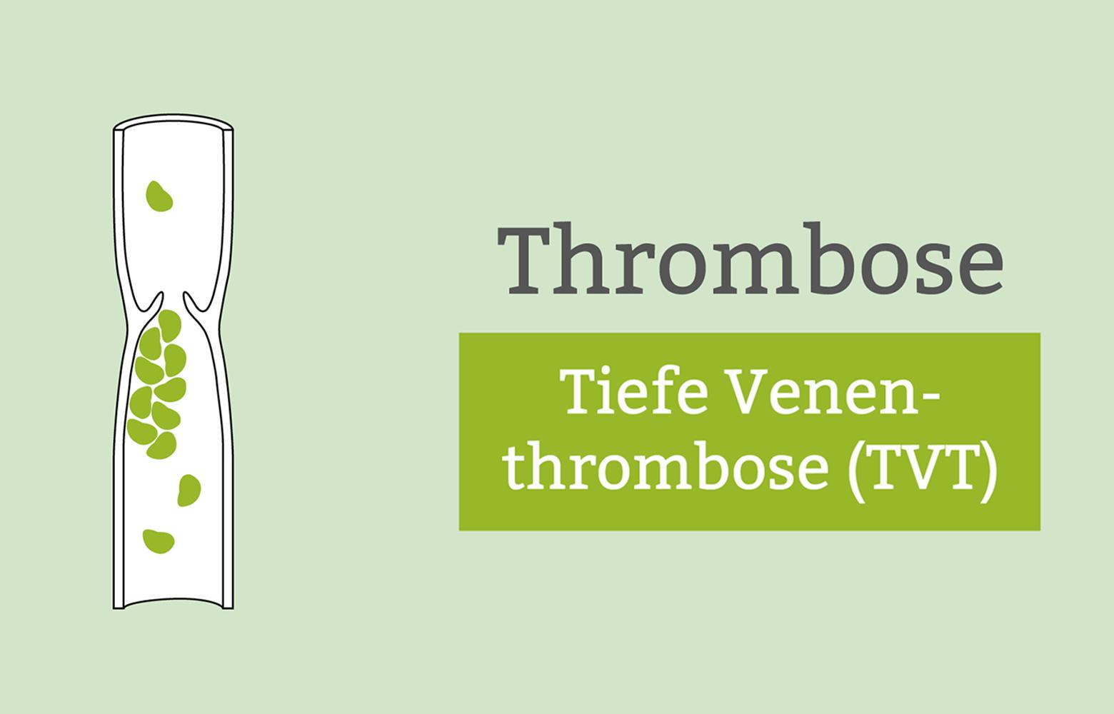 tbvt tvt die thrombose im bein