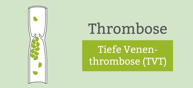 Tiefe Beinvenenthrombose