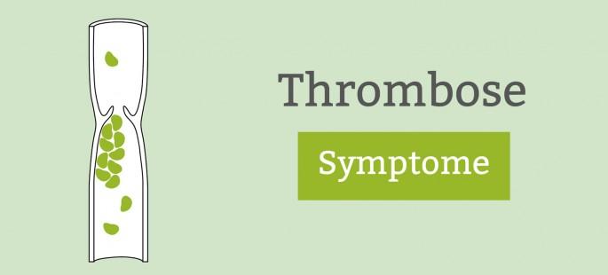 Thrombose: Symptome und Anzeichen